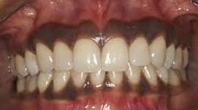 black-gums