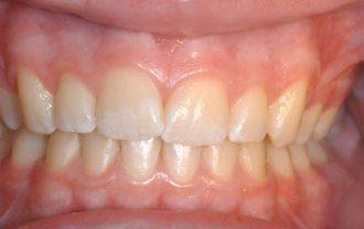 white-spots-on-teeth